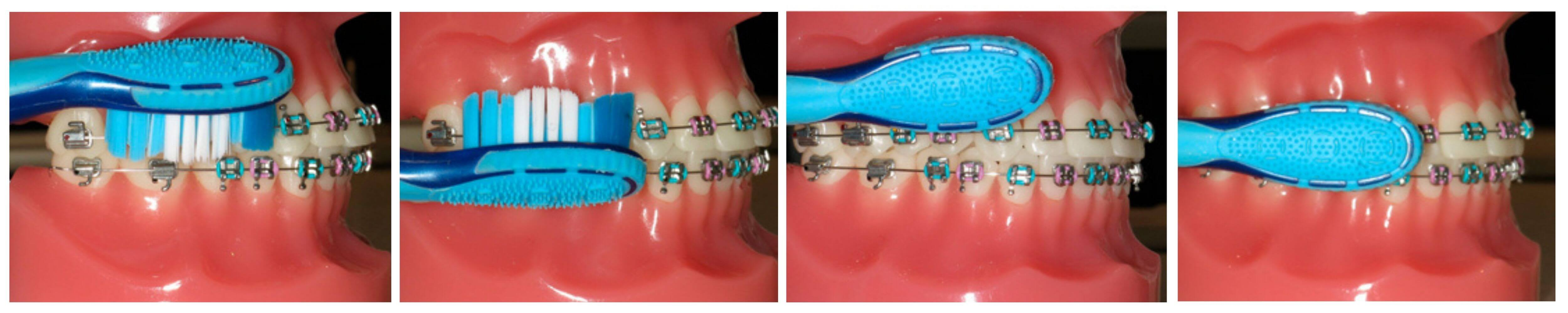 Regular brushing and cleaning is crucial during treatment